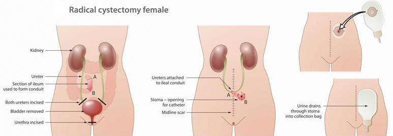 Радикальная цистэктомия женская