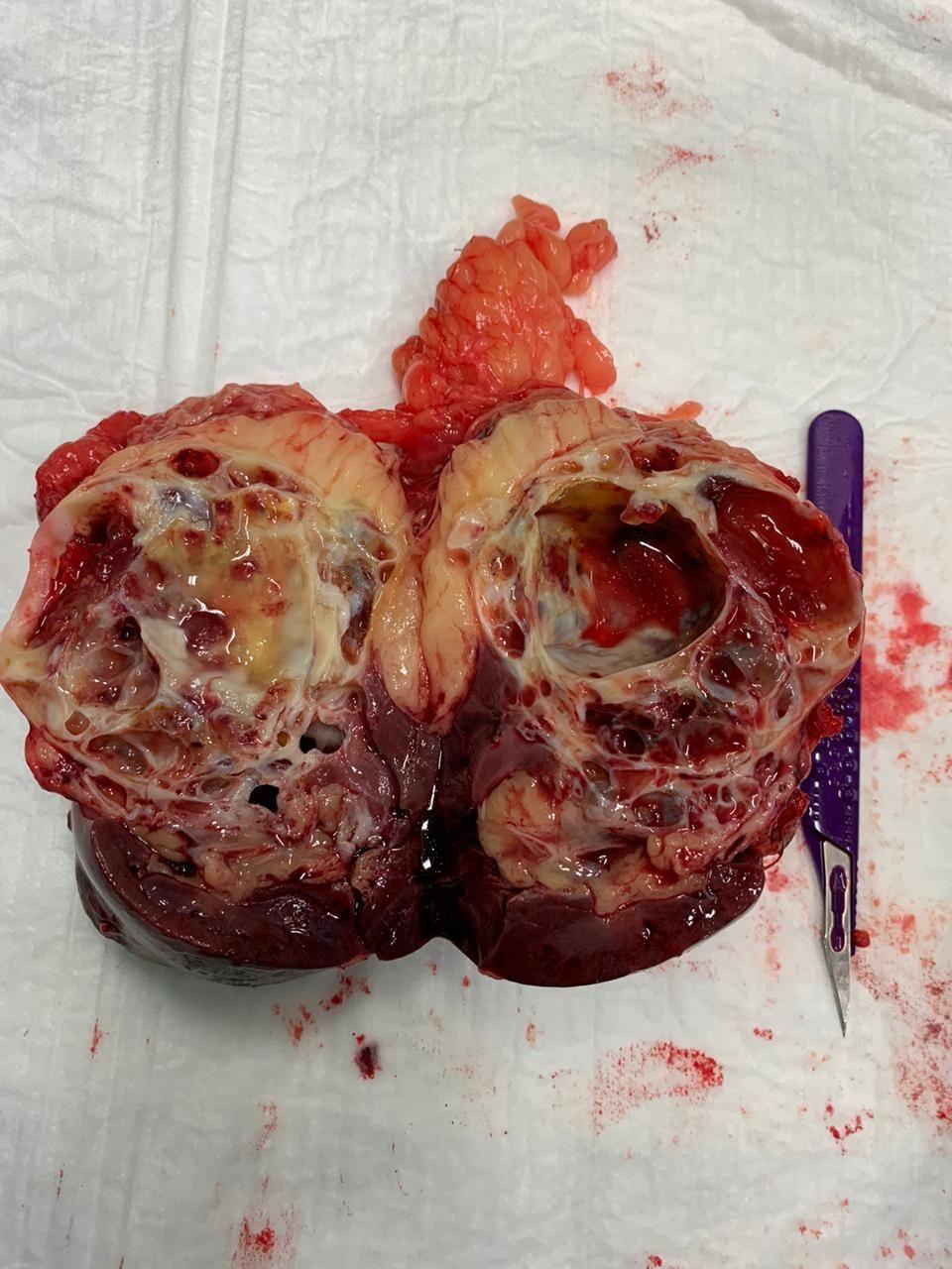 Опухоль почки контралатеральный надпочечник
