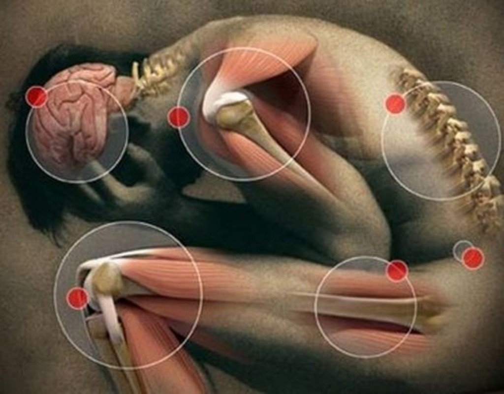 Профилактика и лечение парапареза