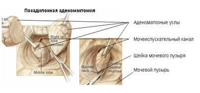 Позадилонная адэноэктомия